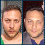 אורי אבן לפני ואחרי